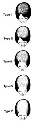 hair_loss_2