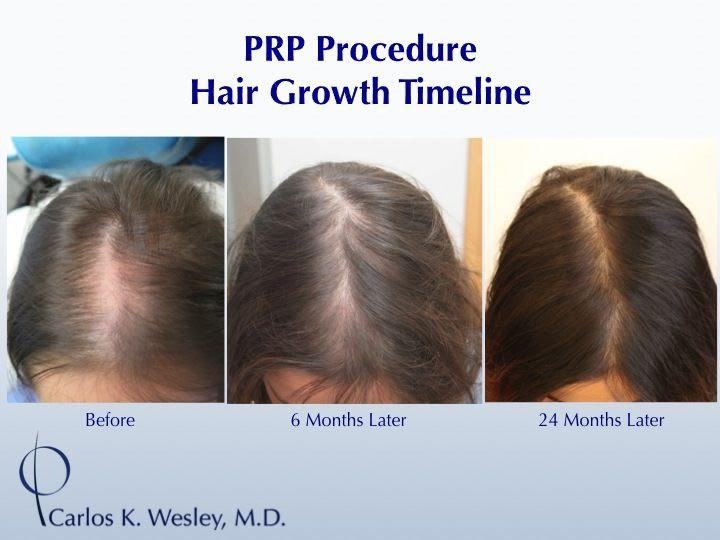 Platelet Rich Plasma Prp For Hair Loss